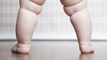 Overweight child (Getty)