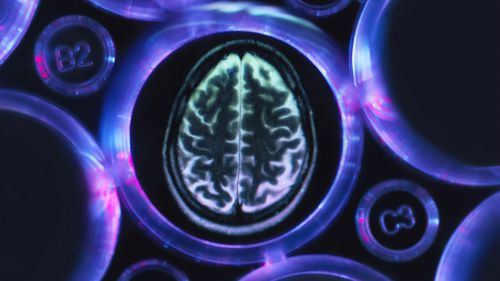 "A new drug to treat Alzheimer's has shown ""very encouraging"" results in global trials."