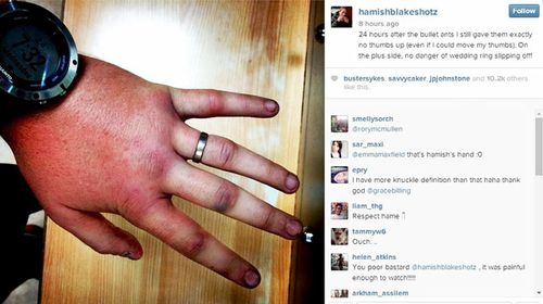 Hamish Blake's injured hand still without feeling 24 hours after an Amazonian bullet ant ritual. (Instagram)