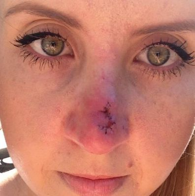Lauren from Married At First Sight shares skin cancer photo