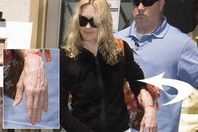 There's nothing unusual about a woman's hands going a bit wrinkly as she ages, but when her face doesn't follow suit, that's when it gets a bit weird. Madonna's hand to face wrinkle ratio has been freaking us out for about a decade now.