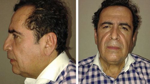 Mexican drug boss Hector Manuel Beltran Leyva has died after suffering a heart attack in jail.