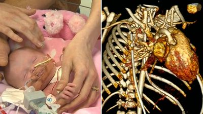Baby's heart placed back inside her chest in rare surgeries