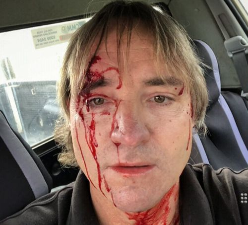 Rodney was hit in the head with a tension wrench. Picture: Supplied