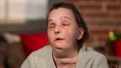 Carmen Tarleton has received her second face transplant since a domestic assault left her severely disfigured.