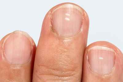 White spots on fingernails