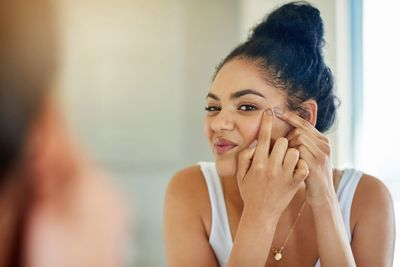 You can experience acne breakouts