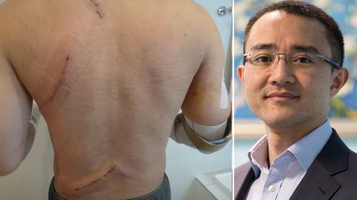 Dr Wong almost lost his life when he was stabbed 14 times by a mentally ill patient.