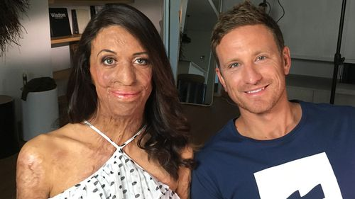 Turia Pitt and Michael Hoskin are expecting a boy.