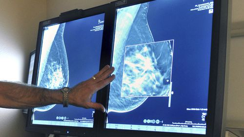 About 20,000 Australians are diagnosed with breast cancer each year. Genomic testing could benefit up to 5,000 of those women, Dr Tim Clay says.