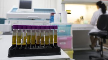 HIV symptoms cure drugs latest news alerts
