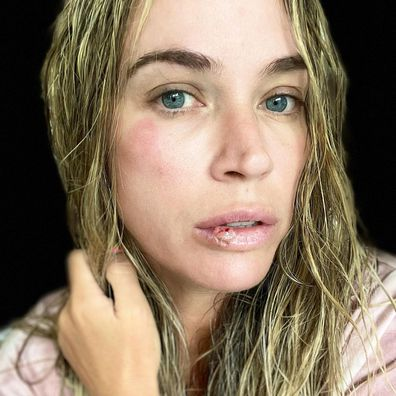 Former Real Housewives of Beverly Hills star Teddi Mellencamp shares photo of 'busted' face.