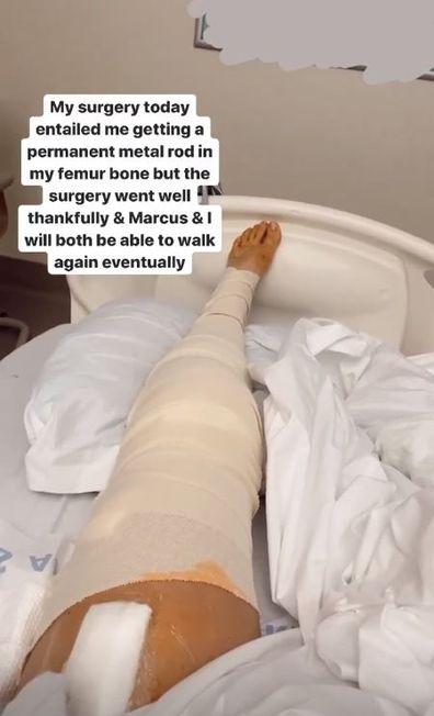YouTube stars, Marcus Johns, Kristin Johns, hit and run, accident, hospital