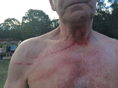 A man has a cut to his neck. (Kroosn Shuttle Service Pty Ltd/Facebook)