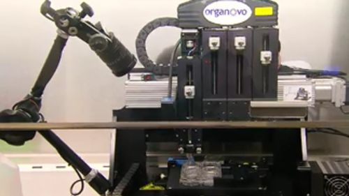 "The 3D printer has the ability to create ""mini kidneys"". (9NEWS)"
