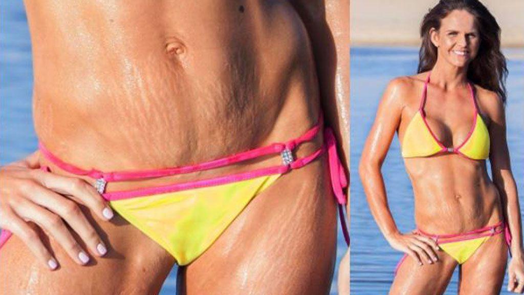 Bikini body pride - stretch marks be damned. Image: Instagram/@sharniandjulius