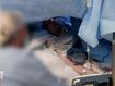 Queensland man receives 'awake' brain surgery in state first