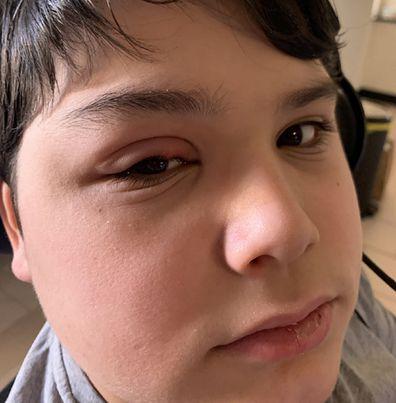 Gio shocking eye condition