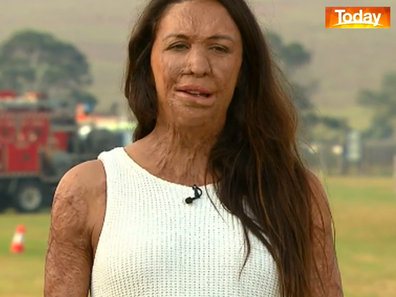 Grass fire survivor Turia Pitt has found the bushfire crisis triggering.