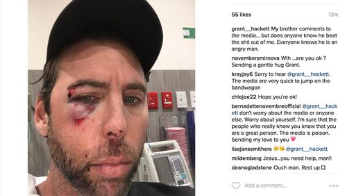 Grant Hackett shared a photo of his badly bruised face after his brother spoke out to the media following the Olympian's Gold Coast arrest. (Instagram: @grant__hackett)