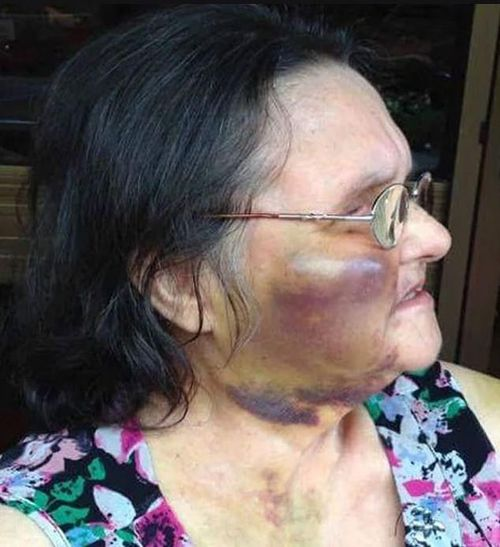 Elizabeth Hannaford was assaulted in an Adelaide nursing home after repeatedly pulling cords out of her bed.