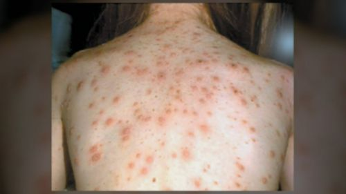 Three to four days after fever symptoms, a rash spreads across the body.