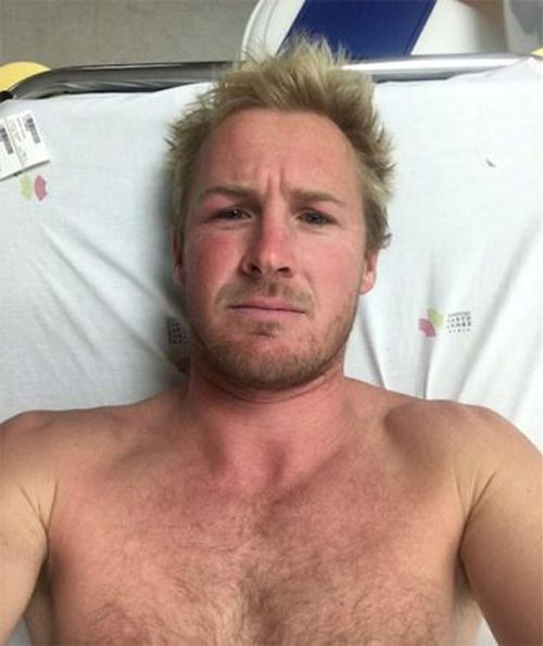 Andrew Cotton post-accident. (Andrew Cotton)