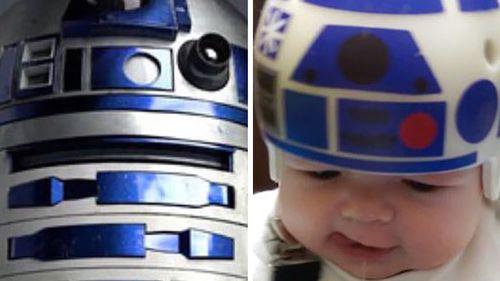 Creative dad turns son's medical headwear into Star Wars helmets