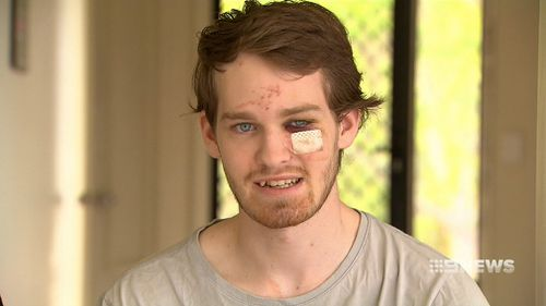 """""""They terrorised my sister, I came downstairs, they came for me."""" (9NEWS)"""