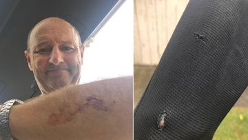 Nick Minogue was left with a deep cut on his left arm after a shark glanced his wetsuit.