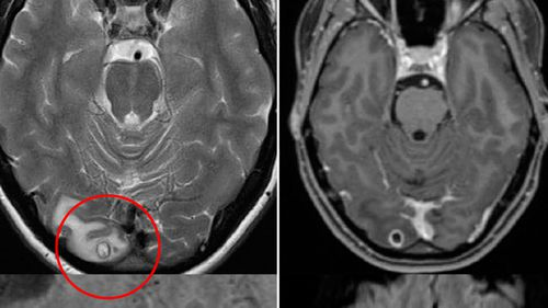Doctors mystified by clump of tapeworm larvae in Melbourne woman's brain