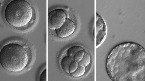 A composite image embryos developing after receiving a gene-correcting enzyme and sperm from a donor. (AAP)