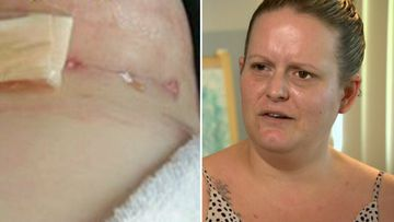 'He butchered you': Call for cosmetic surgery crackdown