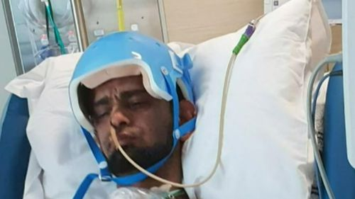 Payenda Zazai's skull was cracked and he suffered bleeding on the brain after the alleged attack.