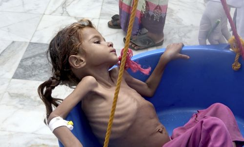 "Severely malnourished seven-year-old Amal Hussein, whose name means ""hope"" in Arabic, is weighed at Yemen's Aslam Health Centre in Hajjah in August."