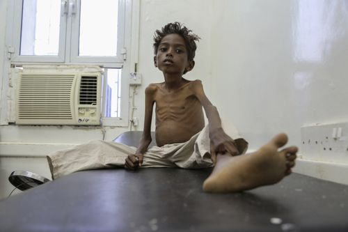 Save the Children estimates 85,000 children have died from hunger in the three years of war in Yemen.