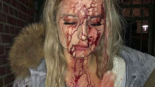 She left the club covered in blood after an unknown man allegedly struck her in the left side of the face with a glass. (Aftonbladet)