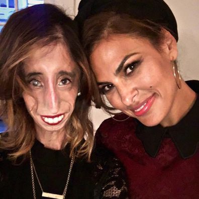 Lizzie Velasquez's work as an anti-bullying activist has seen her unite with celebrities like Eva Mendes.
