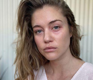 Scherri-Lee Biggs' reaction to makeup