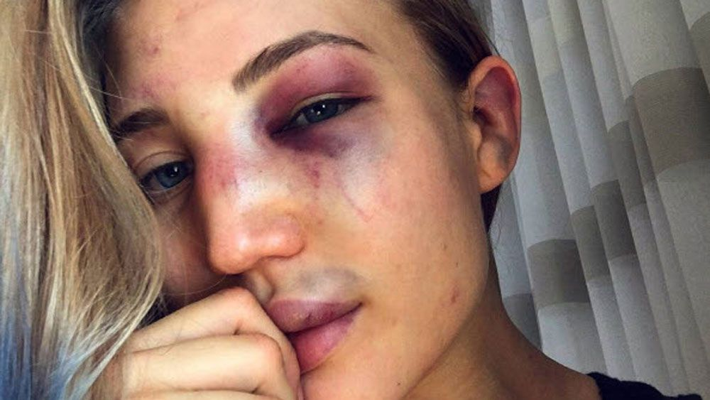 UFC glamour girl shows off battle scars