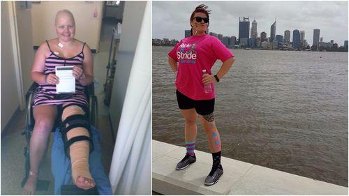 Sarcoma survivor, Louise Wheeler. (9NEWS)
