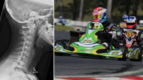 Exclusive: Aussie karting teen breaks 'gallow bone' during race