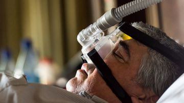 Sleep apnoea research paves way to targeted new therapies
