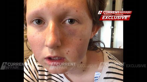 Kayla, who was born without her left hand, said she managed to swim to safety.
