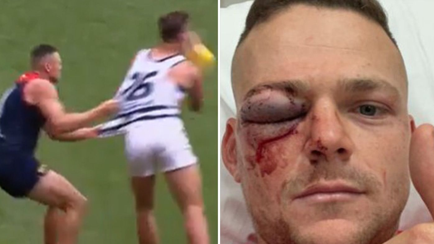 Steven May set for up to a month out after Tom Hawkins elbow left him with grisly diagnoses