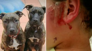 Father of girl attacked by dogs responds to owner's sentencing