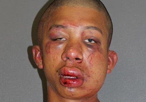 Paedophile teen beaten up by victim's dad sentenced to 25 years