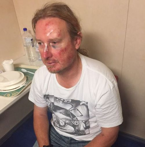 David claims his brother was repeatedly kicked and punched during the brawl. (Supplied)