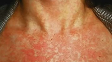 It can take up to 18 days for symptoms to appear following exposure to the disease.