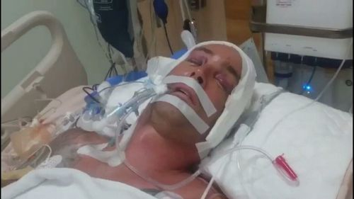 Ben French has been fighting for life since crashing his scooter last Wednesday. (9NEWS)